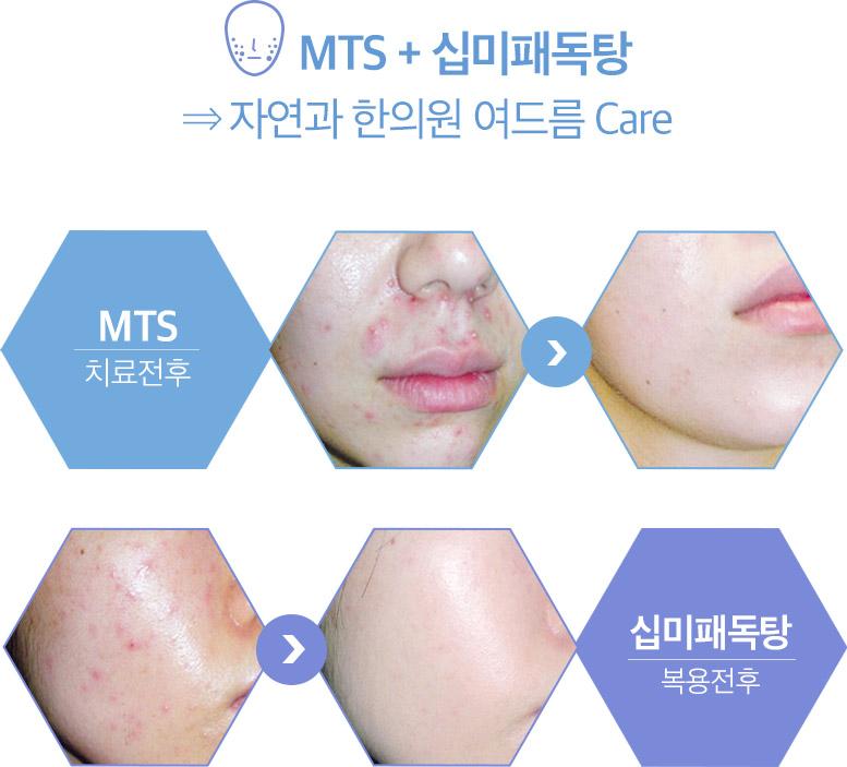 mts+십미패독탕