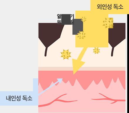 습진,아토피성 피부염1