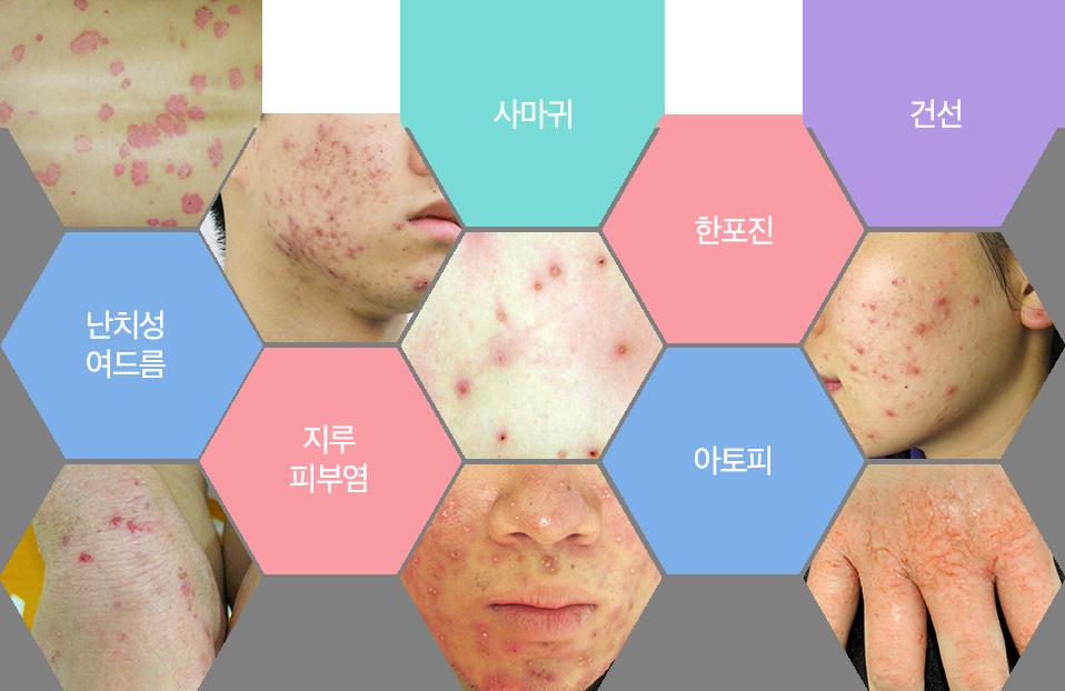 사마귀,한포진,건선,난치성여드름,지루피부염,아토피
